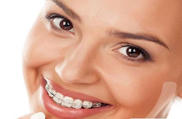 irrigador dental waterpik con brackets