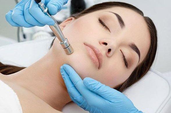 como funciona la microdermoabrasion facial