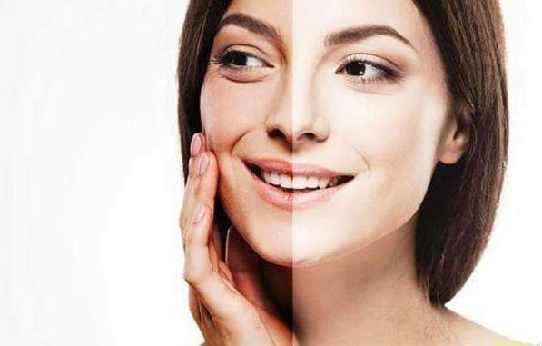 hidrata tu piel para evitar arrugas