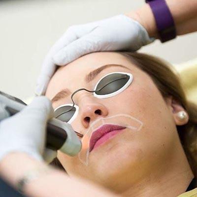 la depilacion facial con laser es segura