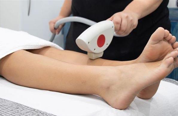 ventajas depilacion laser