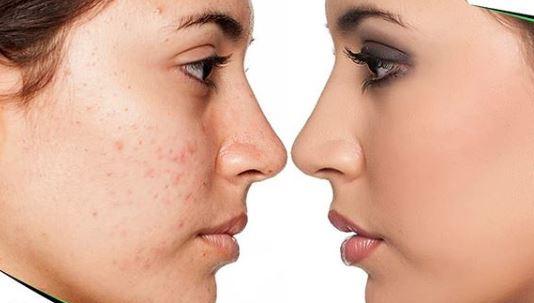 la microdermoabrasion regenera las cicatrices del acne