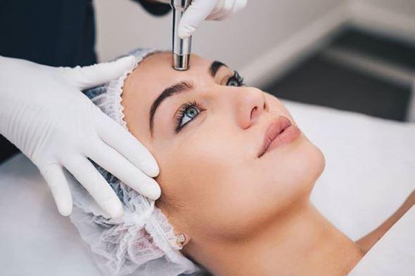microdermoabrasion para eliminar el acne