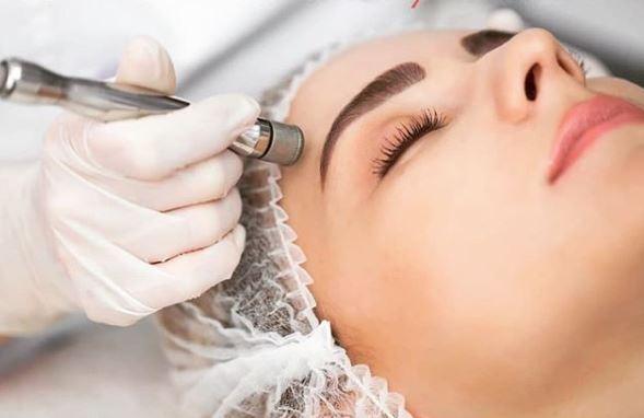 microdermoabrasion para las arrugas