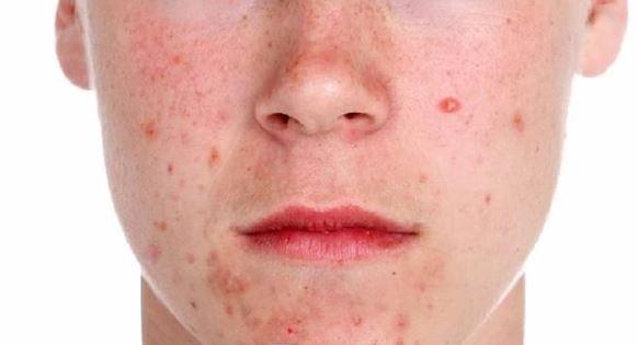 microdermoabrasion y acne activo