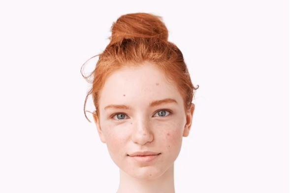 rutina para el tratamiento del acne