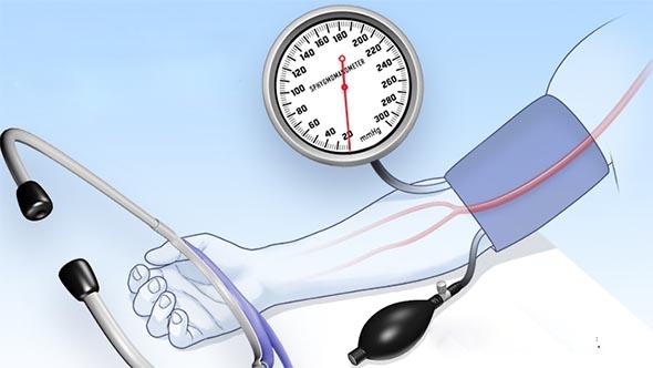 ¿Puede la presión arterial fluctuar de alta a baja concentración?
