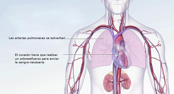 hipertension pulmonar