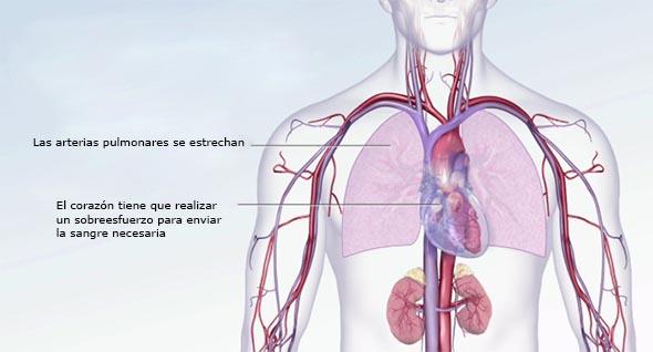 ¿Cómo puede tener presión arterial alta y frecuencia cardíaca baja?