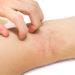 Cómo aliviar el picor en la dermatitis atópica